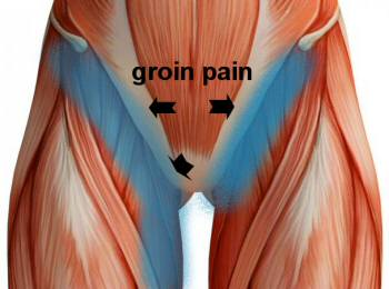 Showing the muscles of the groin